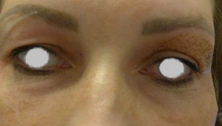 oczy po 1-2