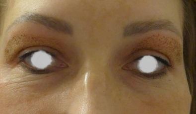 oczy po 2-2