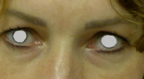 oczy przed2